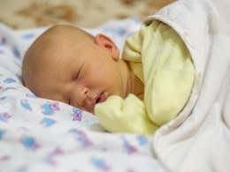 Jaundice-in-newborn-in-hindi